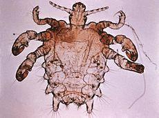 Phthirus pubis